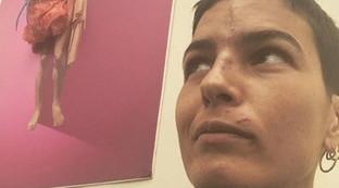 Edelfa Chiara Masciotta mostra per la prima volta le cicatrici dopo l'incidente