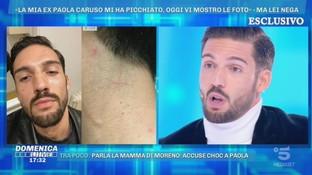 """Moreno Merlo a """"Domenica Live"""": """"Paola Caruso mi ha picchiato, ecco le foto"""""""