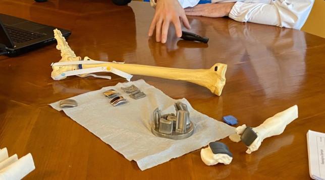 Bologna, per la prima volta impiantata una caviglia stampata in 3D