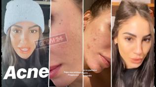 """Giulia De Lellis mostra l'acne: """"Non dobbiamo vergognarci"""""""