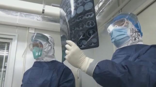 Coronavirus, morto direttore dell'ospedale di Wuhan - Dimesso paziente curato col plasma -