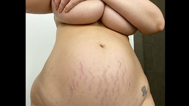 Ashley Graham nuda mostra le smagliature a un mese dal parto