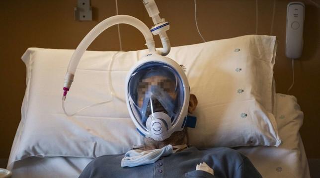 Maria Pia Hospital è la prima struttura in Piemonte a usare le maschere snorkeling modificate Foto