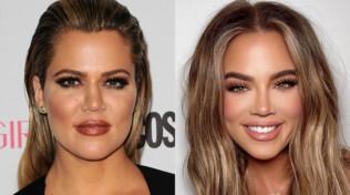 Khloe Kardashian irriconoscibile: photoshop o chirurgia?
