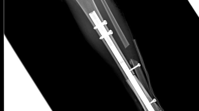 Torino, bimba con tumore osseo crescerà con un chiodo allungabile