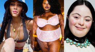 Dalla modella down alla top con la vitiligine: la moda diventa inclusiva