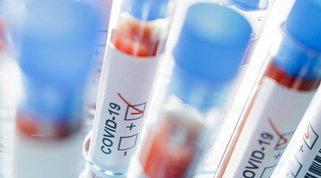 Numerosi i casi di ricaduta dal virus: ora forti dubbi sull'immunità