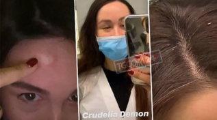 Aurora Ramazzotti disperata tra capelli bianchi e bitorzoli in fronte