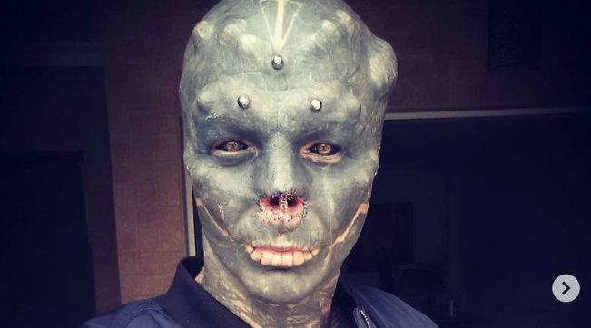 Francia, 32enne si fa asportare naso e orecchie per somigliare a un alieno