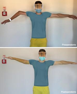 Braccio bimbo guarito dopo 10 anni grazie alla stampa 3D