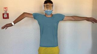 Braccio di un bimbo guarito grazie alla stampa 3D Foto