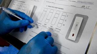 Covid, Sardegna avvia screening di massa con test rapidi