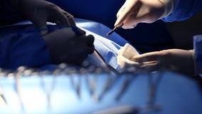Usa: studio rivela che giocare ai videogiochi aumenta le abilità chirurgiche