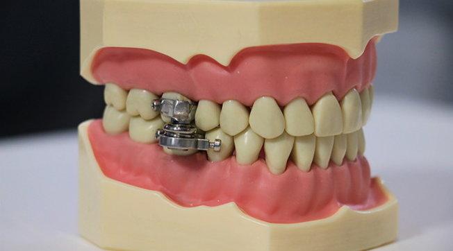 Lotta all'obesità, in Nuova Zelanda arriva il magnete che blocca la mandibola impedendo di aprire la bocca