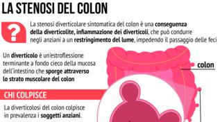 Che cos'è la stenosi del colon