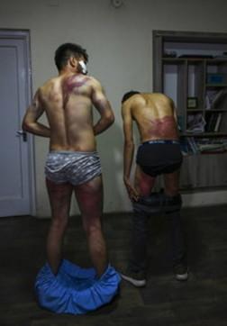 Afghanistan, le immagini shock dei giornalisti picchiati dai talebani