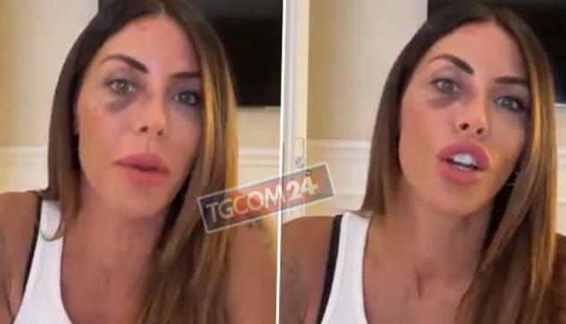 """Guendalina Tavassi con l'occhio nero: """"Non posso parlare"""""""
