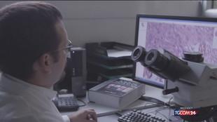 Diagnosi precoce e cura per la patologia dei fibromi